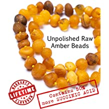 5.5 OR 6.3 inches Amber Teething Bracelet or Anklet for Babies Amberta Raw 100/% Pure Amber Immune System Boost Anti Inflammatory Teething Discomfort /& Drooling Relief Handmade